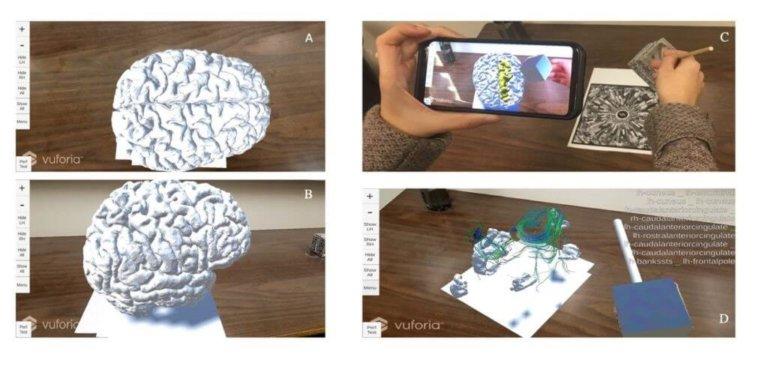Mettre la réalité augmentée au service de la neurochirurgie Featured Image